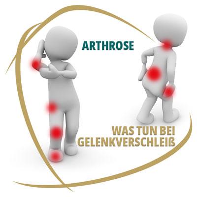Arthrose - Was tun bei Gelenkverschleiss